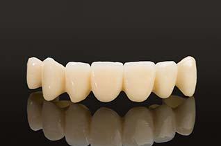Zahnreihe Bruecke aus Zirkon Keramik
