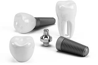 2 zahnimplantate zerlegt in implantat abutment krone 3d modell