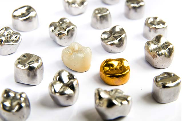 zahnkronen aus edelmetall, nichtedelmetall keramik und gold