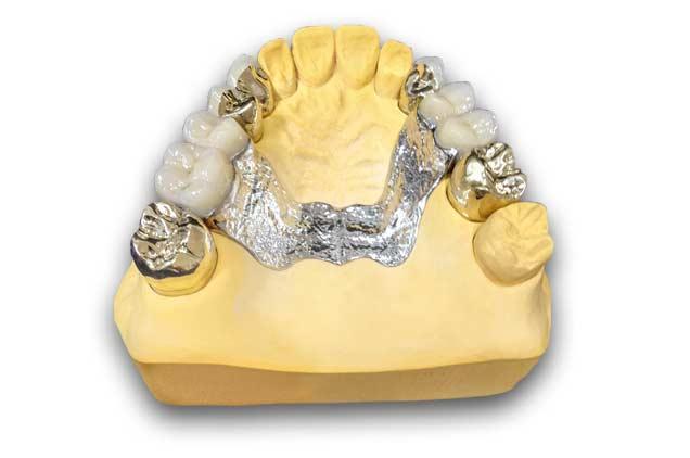 Vollprothese kombinierter Zahnersatz vor grauem hintergrund